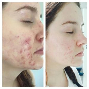 Roccoco Acne Programs For Mild Moderate And Or Cystic Severe Acne Skin Bloom Earthly Beauty